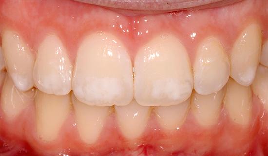 vita fläckar på tänderna